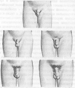 simptomi-nedavnego-seksa