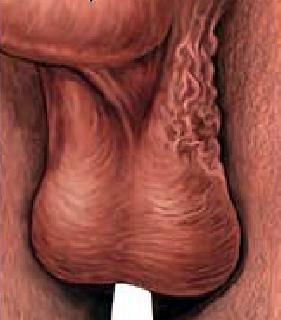 polovie-organi-prostitutki